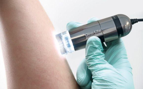 Цифрова дерматоскопія