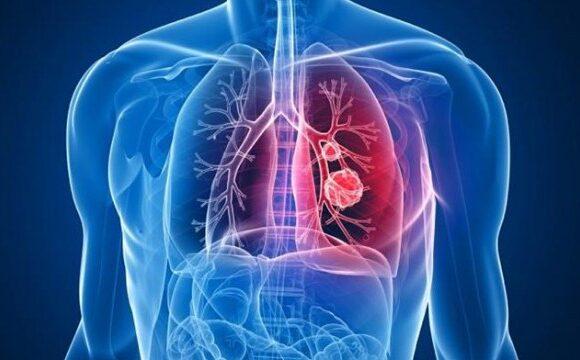 Оосновні аспектами в діагностиці та лікуванні раку легень